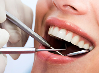 Dental Patient Financing | Braces, Root Canal, Teeth Implants | Denefits