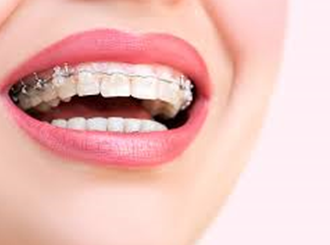 Average Cost Of Orthodontic Treatments | Orthodontics Patient Financing | Braces, Bonding | Denefits