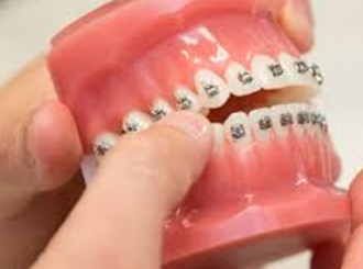 Orthodontic Treatment Financing