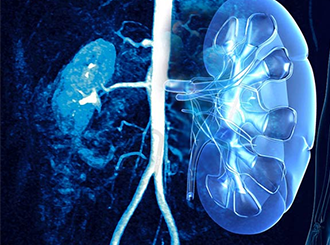 Urology Patient Financing | Kidney Stones | Scrotoplasty | Denefits
